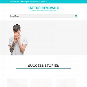 Tattoo Removal Sydney
